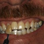 Brookdale Dental Boise ID Dentist 208-373-0018